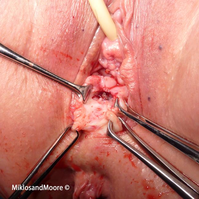 Can ra cause vaginal pain