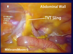 Picture 1:  Sigmoid Colon pulled up to the Abdominal Wall