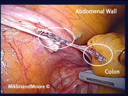 Picture 4:  Picture of the released bowel with the old TVT sling going through and through  the bowel. This area of bowel had to be removed and resected.