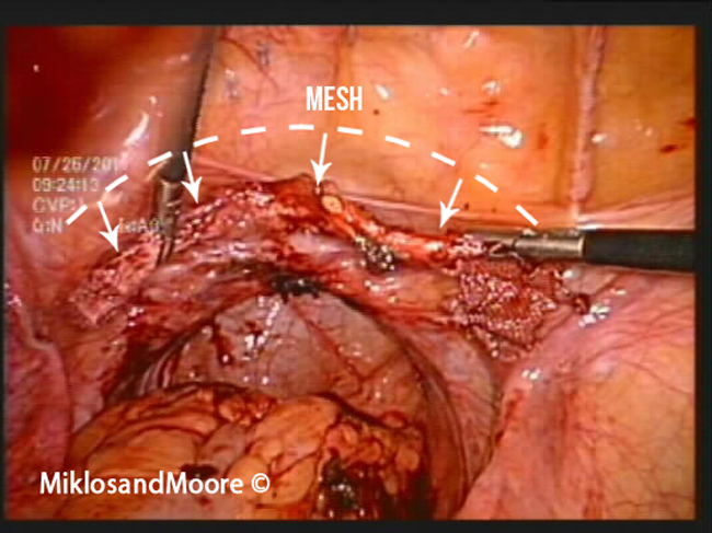... length/size of the mesh and how the whole mesh was removed from the: http://www.meshsurgeons.com/casestudy28.php
