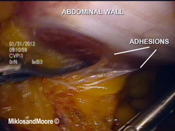 Adhesions are identified and cut using scissors