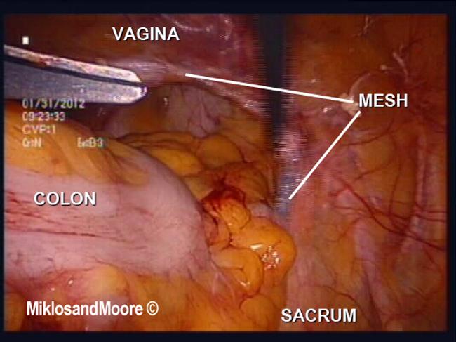 Painful vagina walls during sex