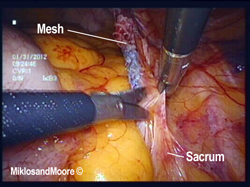 Figure 4 - The peritoneum is incised to access the sacral colpopexy mesh