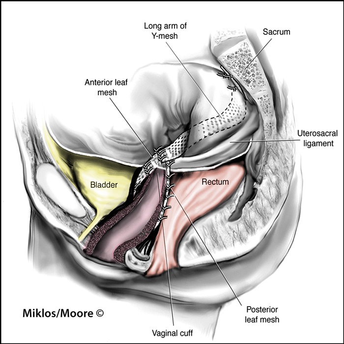 Sacral Colpopexy Complication Infection Abscess Of Mesh