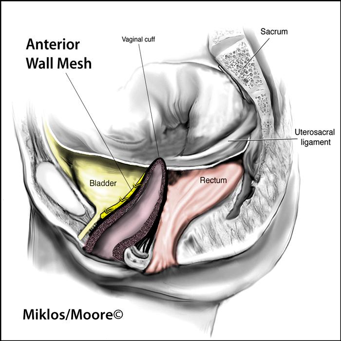 Anterior wall of vagina texture