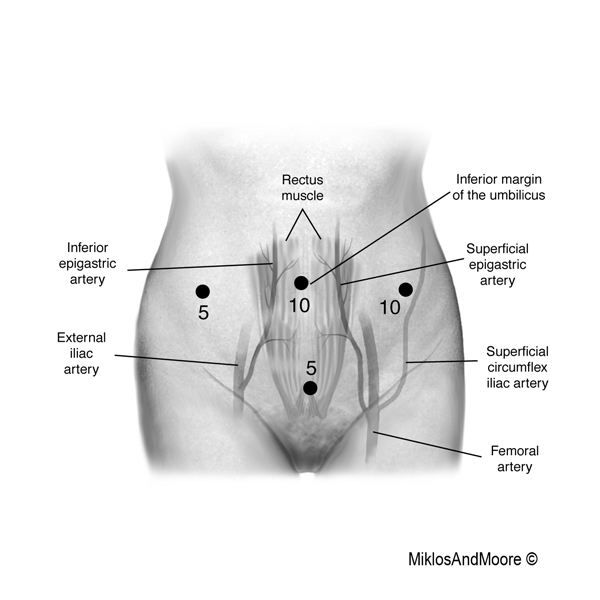 Urinary Retention And Lower Abdominal Pain Mesh Surgeons Patient Story 1